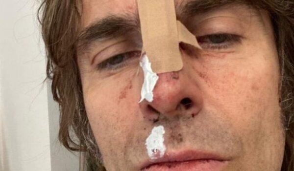 La foto que compartió Liam Gallagher, exlíder de Oasis, tras «caerse de un helicóptero»